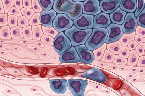 Tumor microenvironment (TME)