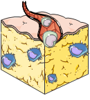 Adiponecting Type 2 Diabetes 3D Vascularized adipocyte